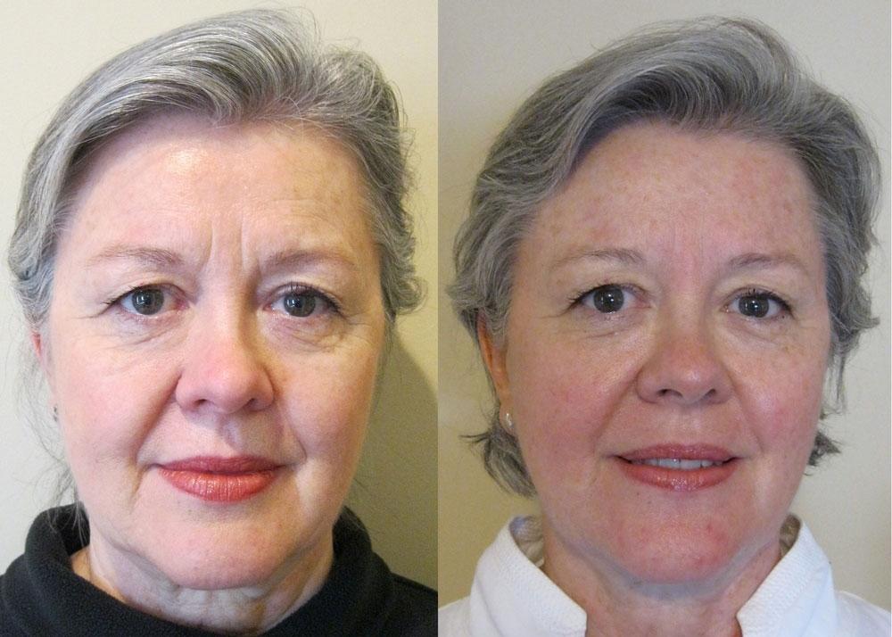 Facial lift massage